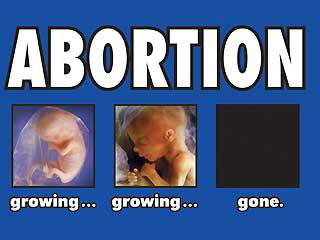 a discussion on the issue of abortion Personal would have no argument, on this score, against abortion the second  type of potentiality is active here the issue is not about what a being (patient) can .